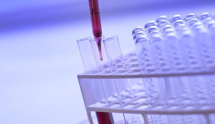 Počet testovaných lidí v kraji nejvíce záleží na ochotě přiznat si příznaky a volat lékaři